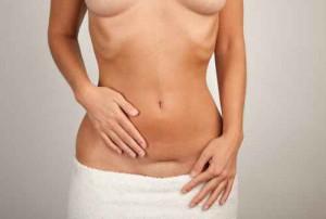 Frau mit Narben am Unterleib