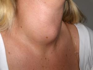 Hipotiroidismo: causas, consecuencias y tratamiento