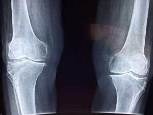 La osteoporosis, después de una fractura, está infratratada