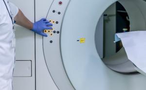 El cribado mediante TCBD reduce la mortalidad por cancer de pulmon