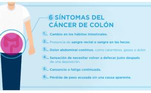 Seis síntomas que nos alertan de la posibilidad de padecer un cáncer de colon