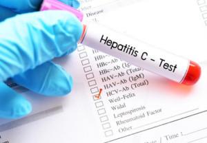 Desciende el número muertes por hepatitis víricas en España
