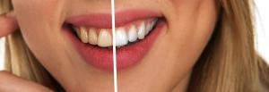 Tener una sonrisa de anuncio es más fácil de lo que crees. Te contamos cómo