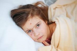 La OMS verifica que España continúa un año más en estado de eliminación de sarampión y rubeola