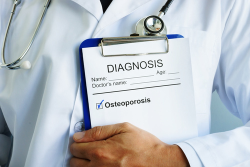 Diagnosis Osteoporosis concept. Doctor is holding medical form.