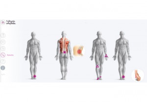 Fedefarma crea un póster de ortopedia interactivo como apoyo al consejo farmacéutico